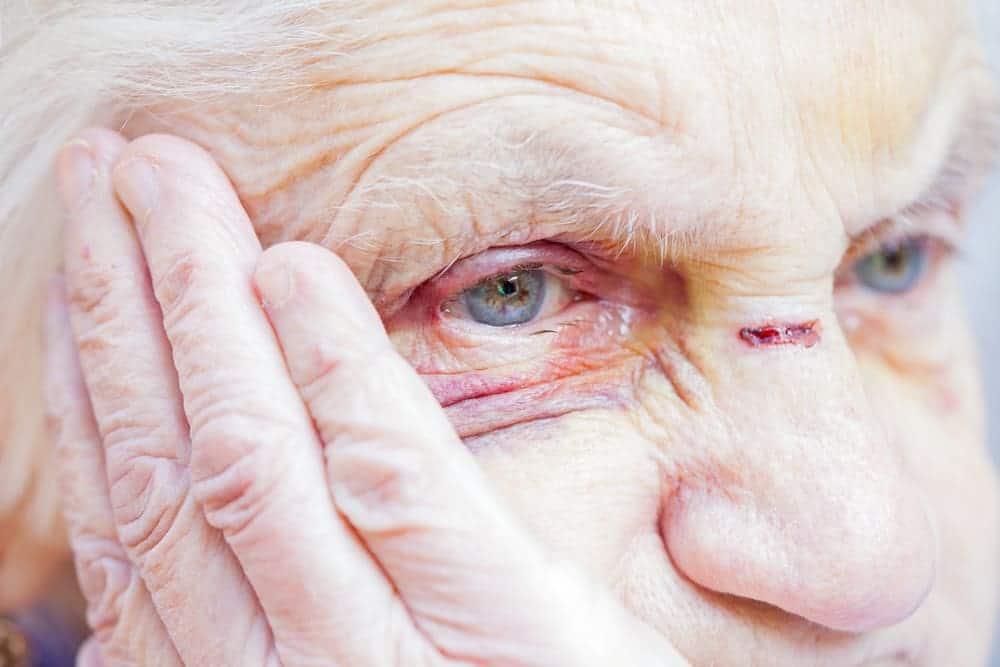 injured elderly